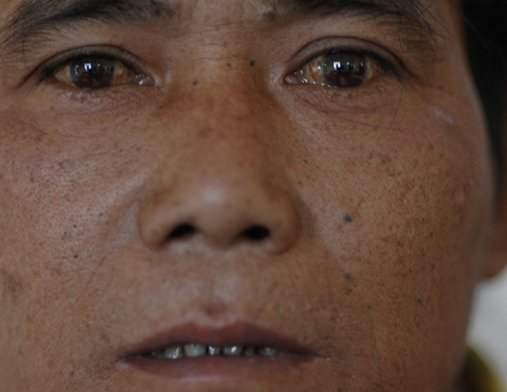 MYANMAR/OPIUM